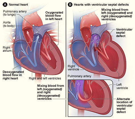 ventr_septal_defect