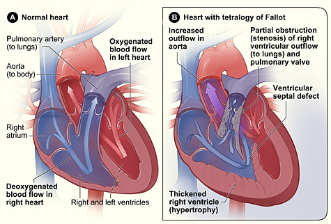 Pediatric Cardiothoracic Surgery Tetralogy Of Fallot