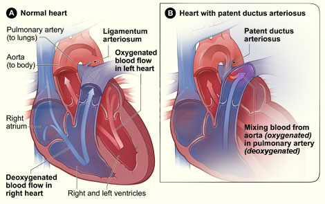 Pediatric cardiothoracic surgery patent ductus arteriosus figure a shows the interior of a normal heart and normal blood flow figure b shows a heart with patent ductus arteriosus the defect connects the aorta ccuart