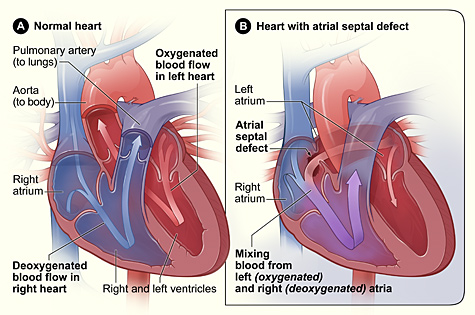 Pediatric Cardiothoracic Surgery Ventricular Septal Defect